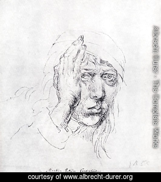 Albrecht Durer - Self-Portrait with Bandage